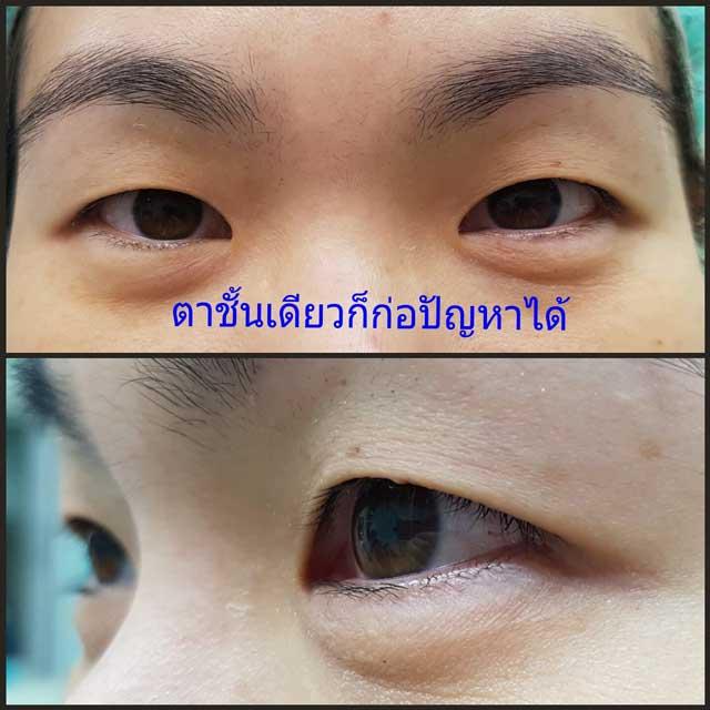 ตาชั้นเดียว (Single eyelid crease)