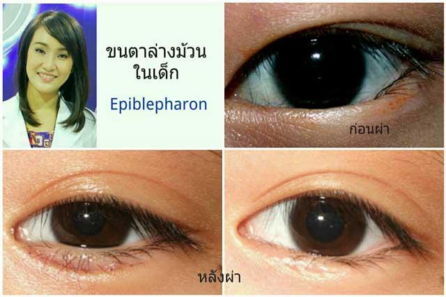 ภาวะขนตาล่างม้วนในเด็ก (Epiblepharon)