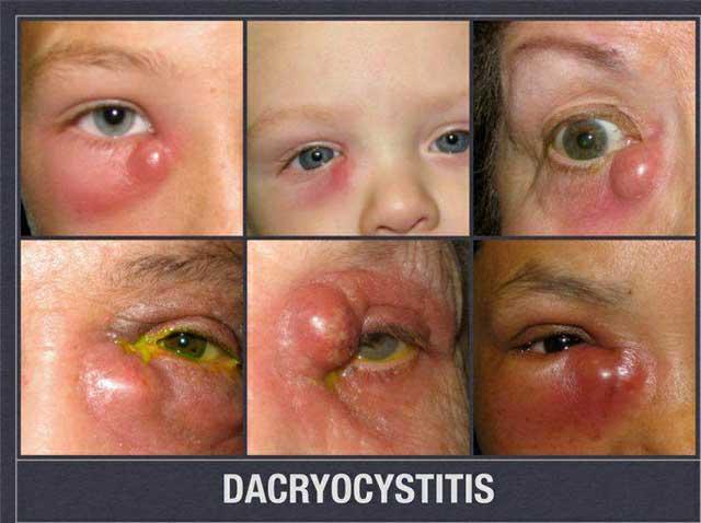 ภาวะถุงน้ำอักเสบติดเชื้อ (Acute dacryocystitis)