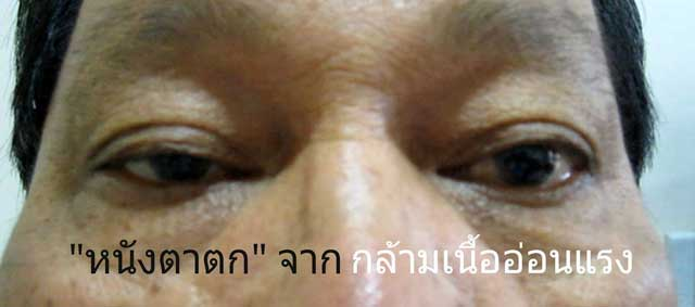 ภาวะหนังตาตกจากโรคกล้ามเนื้ออ่อนแรง