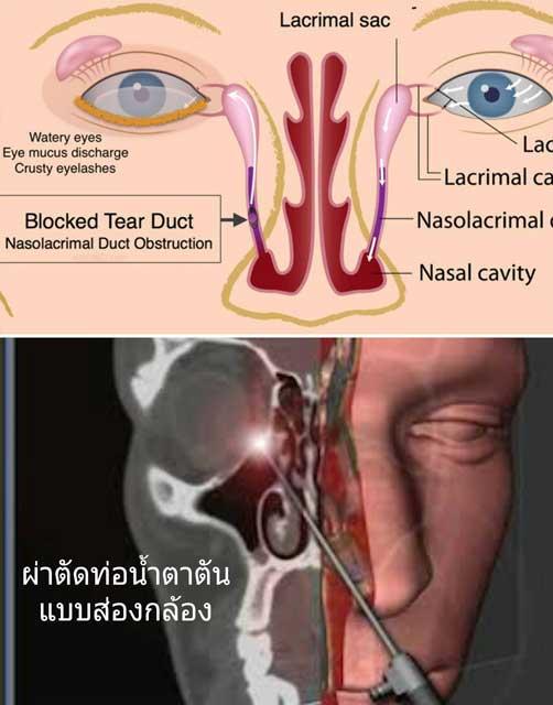 การแก้ไขภาวะท่อน้ำตาตันด้วยการผ่าตัด (Dacryocystorhinostomy, DCR)