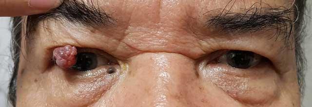 มะเร็งผิวหนังรอบดวงตา