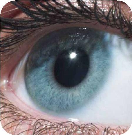 แก้ปัญหาสายตาด้วยเลนส์เสริม ICL